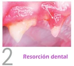 resorcion dental premolar